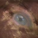 Göz 9